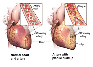 Illustration of the heart and arteries, as well as plaque build-up in arterial wall